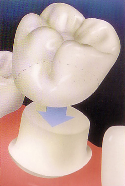 dental_crown_diagram